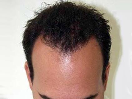 Saç, nakilden ne kadar süre sonra çıkmaya başlar?