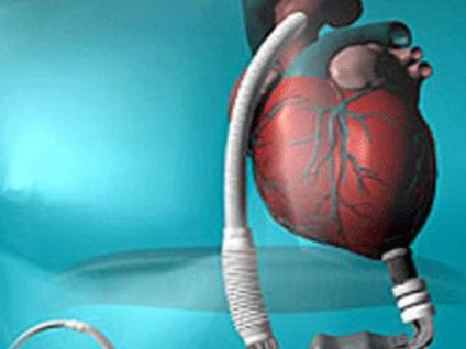 SGK kalp nakli ve yapay kalp nakil sistemlerini karşılıyor mu?