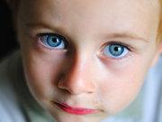 Çocuklarda şaşılık tedavisi