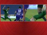 Futbolcunun ayağı kırıldı takım arkadaşları gözyaşlarına boğuldu