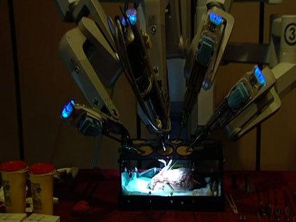 Robotla açık kalp ameliyatı!