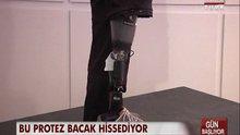Hisseden protez bacak!