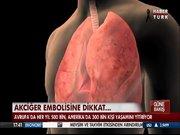 Akciğer embosiline dikkat!