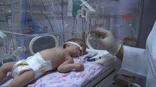 Gaziantep 3 günlük bebeğin yemek borusundan taş çıktı