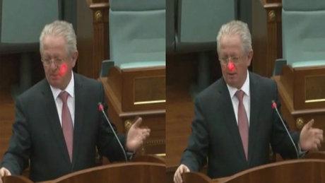 Meclis'te kürsüdeki bakanın yüzüne lazer tutuldu