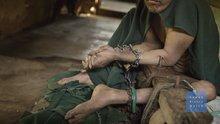 Endonezya'da psikolojik rahatsızlığı olan 18 bin hasta zincire vurulmuş yaşıyor