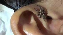 Hastanın kulağından örümcek çıktı!