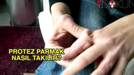 Protez parmak nasıl takılır?