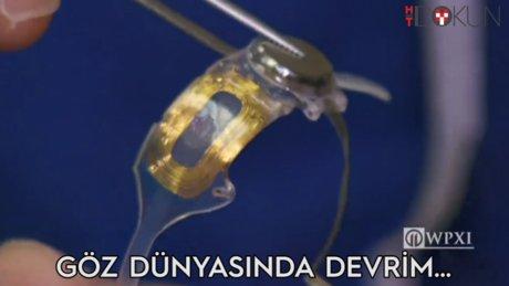 Göze implant devri