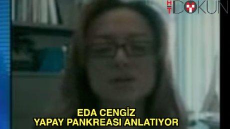 Eda Cengiz yapay pankreası anlatıyor