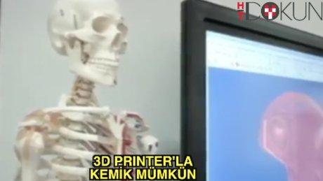Çare printerdan çıkan kemik