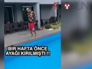 Ayağı kırılan Talisca bir haftada yürüdü!