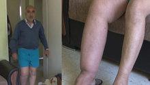 Fil hastası yaşlı adam çocuklarına bakabilmek için tedavi istiyor