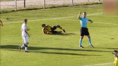 Ayağı kırılan Dario Scuderi futbolu bıraktı!
