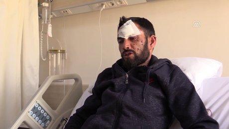 Uşak'ta bir kişi taşınabilir güç kaynağının patlaması sonucu ağır yaralandı