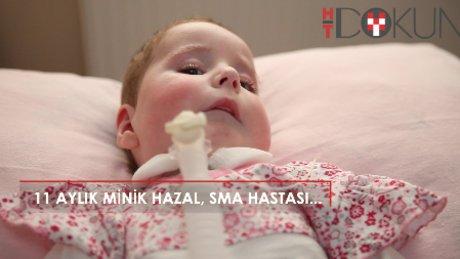 11 aylık SMA hastası minik Hazal'ın tek umudu...