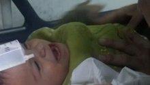 Küllüğe parmağı sıkışan bebeğe AFAD müdahalesi