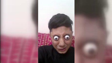 Gözünü yuvasından çıkartan Pakistanlı