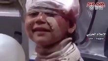 Yaralı Suriyeli küçük kızın gülümsemesi herkesi etkiledi