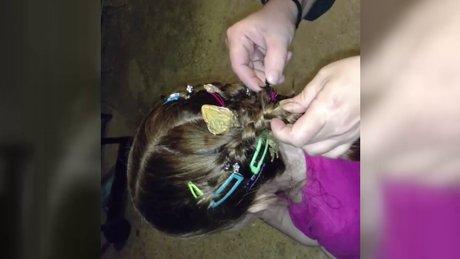 Ailesi küçük kızın saçından kertenkele çıkardı!