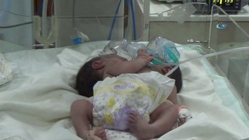 Suriye'de çift başlı bebek dünyaya geldi