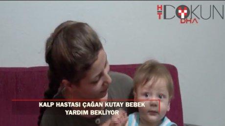 Kalp hastası Çağan Kutay bebek yardım bekliyor