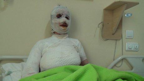 Üzerine sıcak su dökülen 8 çocuk annesi haşlandı