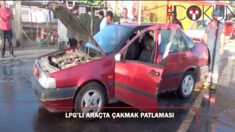 İçinde çakmak çakılan LPG'li araç alev aldı: 1 yaralı