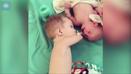 Kolları olmayan bebeğin kardeş sevgisi