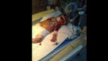 Minik bebeğin vücudu kuvözde morarıp şişmeye başladı