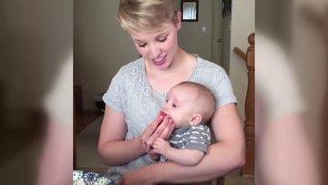 Karpuz hastası bebek