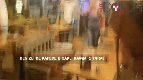Denizli'de iki grup arasında çıkan kavgada 1 kişi yaralandı