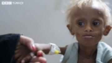 Yemen'deki insani krizin sembolü 7 yaşındaki Saleem