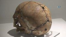 11 bin yıl önce ilk beyin ameliyatının yapıldığı Aşıklıhöyük, tarihe ışık tutuyor