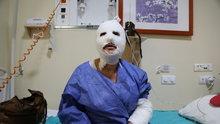 Erzurum'da patlayan düdüklü hastanelik etti