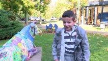 'Kelebek çocuk' deneysel gen tedavisiyle kurtuldu