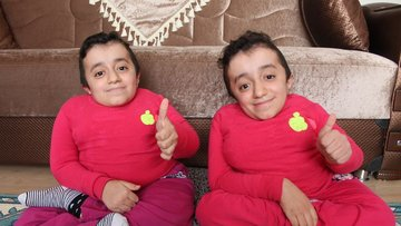 """Cam kemik hastası, ikizler """"Birinin kemiği kırılınca diğeri de hissediyor"""""""