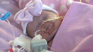 Kalbi dışarıda doğan bebek üç ameliyatla kurtarıldı