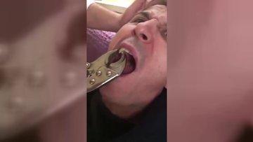 Tadilatta kullanılan ayarlı penseyle diş çektiler!