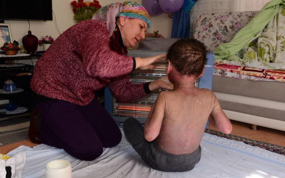 Hiç durmadan kaşınan çocuğun feryadı duyuldu... Sağlık Bakanlığı devreye girdi