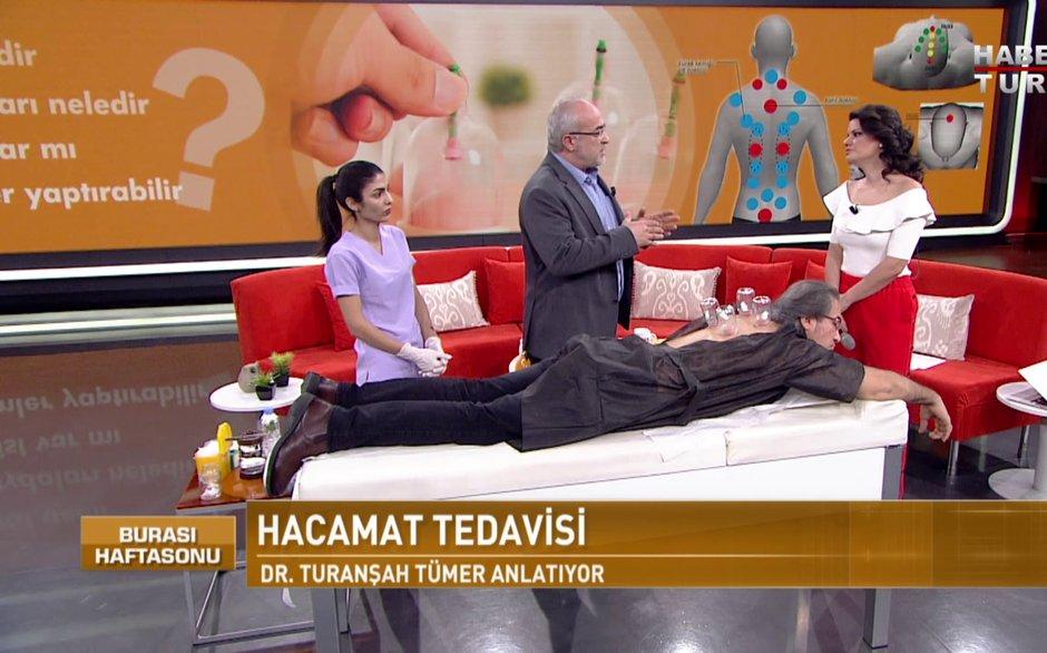 Burası Haftasonu - 17 Şubat 2018 (Hacamat ve Sülük Tedavisi / Dr. Turanşah Tümer)