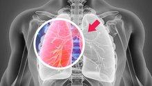 Akciğer kanserinin tedavisi mümkün müdür?
