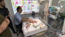 Konya'da doğan yapışık ikizler ameliyatla ayrıldı, biri kurtarılamadı