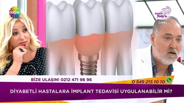 Diyabetli hastalarda implant tedavisi!