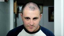 Türkiye'de saç ekimi: Bir İngiliz'in kellikle mücadele yolculuğu