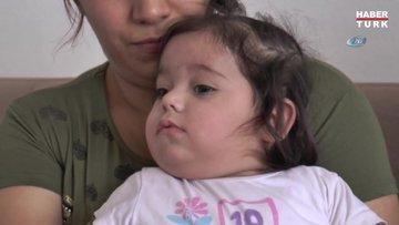 5 Ayrı hastalığın pençesindeki Minik Hiranur, yutkunursa ölecek