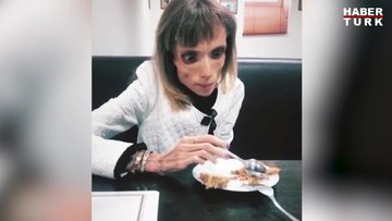 Anoreksiya hastası Kristina Karyagina 17 kilo