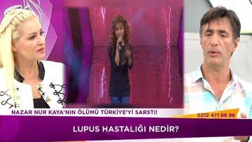 Lupus hastalığa nedir?
