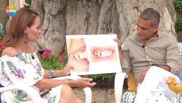 Diş çarpıklığının sebepleri nelerdir?