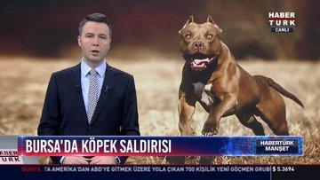 Bursa'da köpek saldırısı: Köpeğin ısırdığı üniversite öğrecisi yaralandı